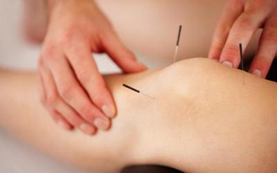 WICHTIG: Akupunkturtag Schmerztherapie am 21. März 2020