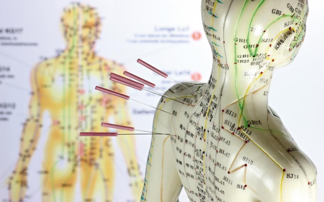 Akupunkturtag Bewegungsapparat am 20. März 2021 (WEBINAR)